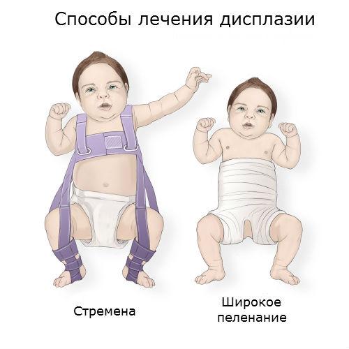 дисплазия тазобедренного сустава у новорожденного