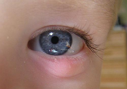 Гной из глаз ребенка фото
