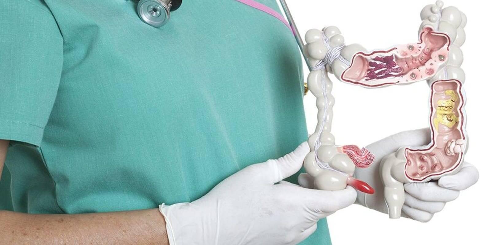 кишечник у врача в руках